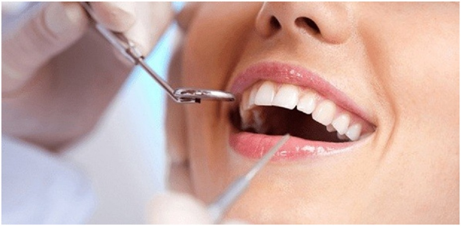 Why It Makes A Great Sense To Go For Dental Implants?