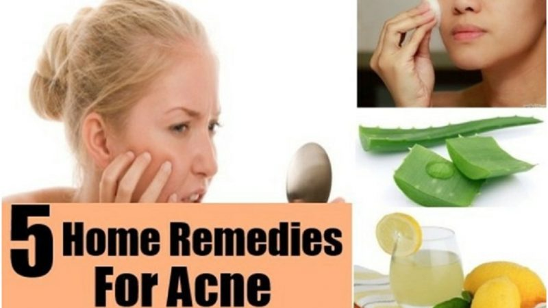 5 Effective Home Remedies for Acne