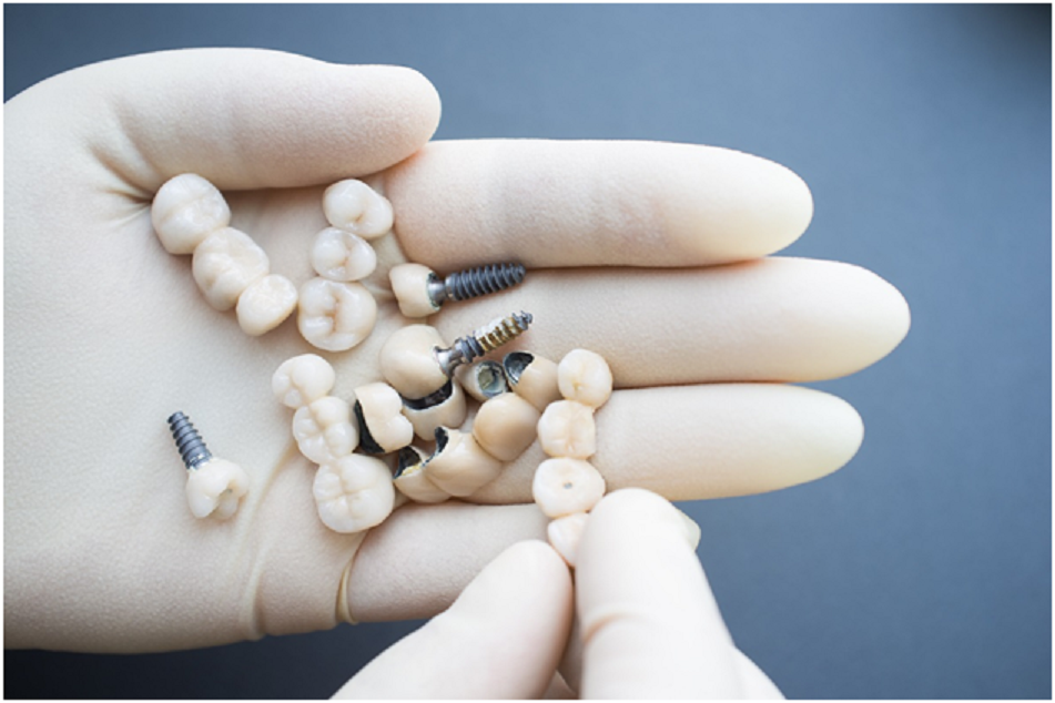 Change your life with multiple dental implants