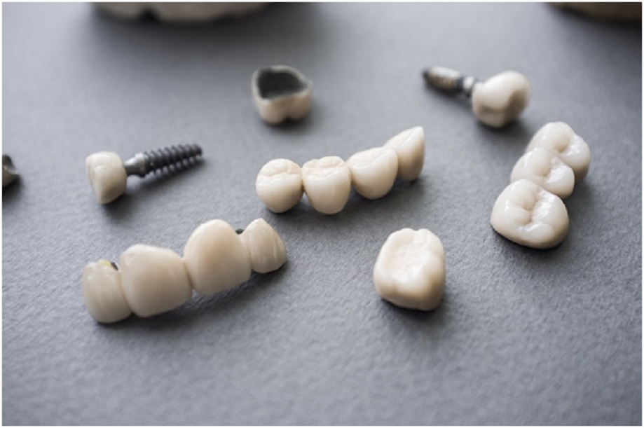 What is all the fuss about regarding All-on-4 dental implants?