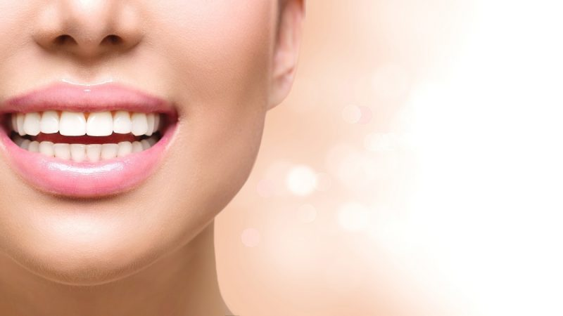A beginner's guide to Incognito teeth braces in Weybridge