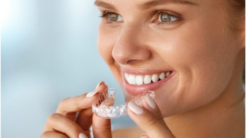 How to discreetly straighten teeth brace