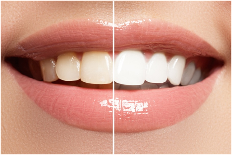 Want to whiten your teeth? visit your dentist for whiter smile
