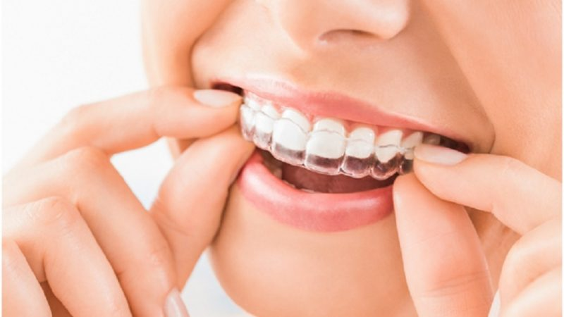 Is there more than one type of Invisalign brace?