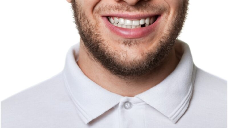 The causes of tooth loss