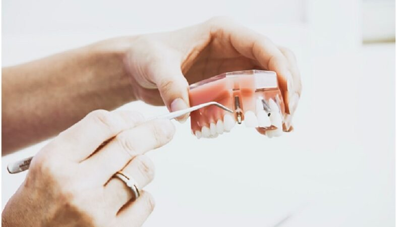 Getting dental implants to give your smile a boost